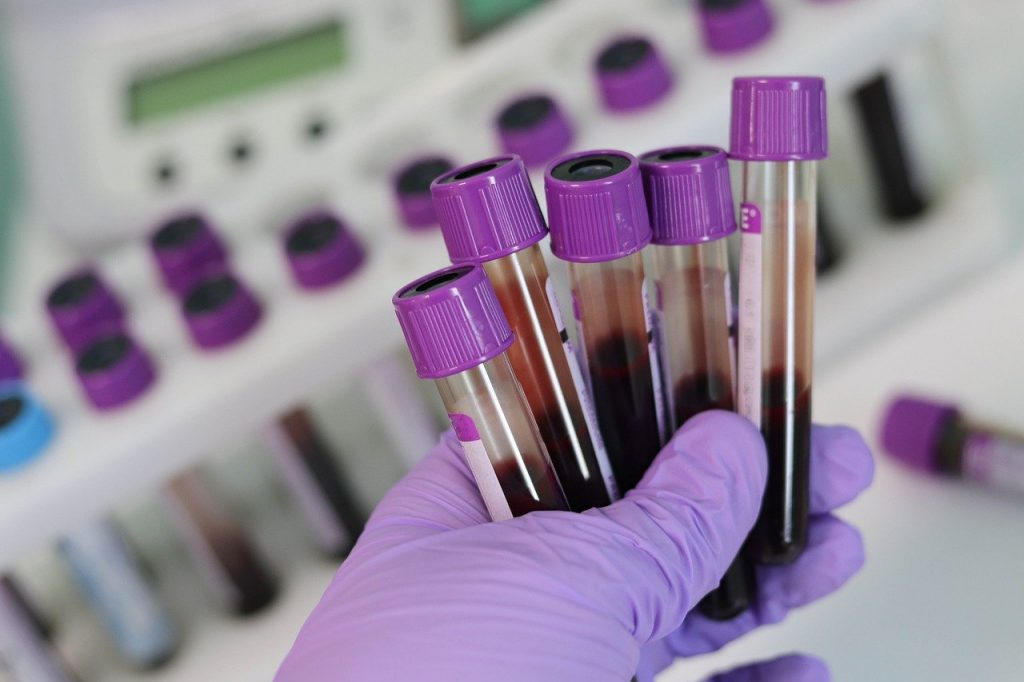 Blodprøver - Sykehushistorier